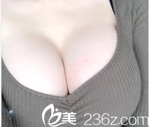 发小称叹我在北京协和医院找赵茹做妙桃圆形假体隆胸效果美赞价格不贵