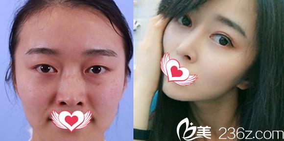 合肥白领安琪儿芭比眼综合+鼻综合案例前后对比效果图呈现