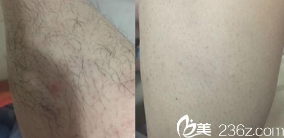 在合肥白领安琪儿做激光脱腿毛案例效果对比图展示