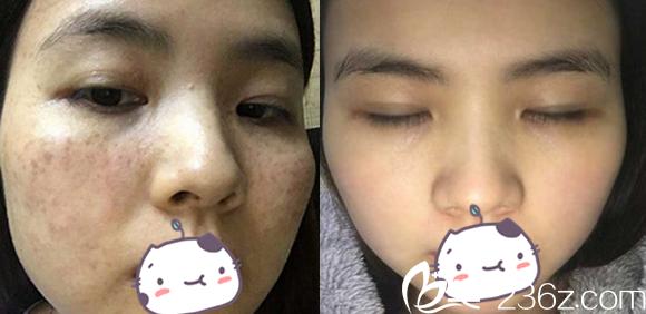激光祛斑有疤吗?看合肥白领安琪儿激光祛斑20天和术前对比图片