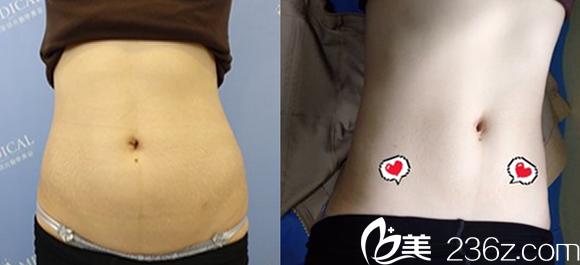 腰腹吸脂多久能消肿?看腰腹吸脂一个月效果图和术前对比