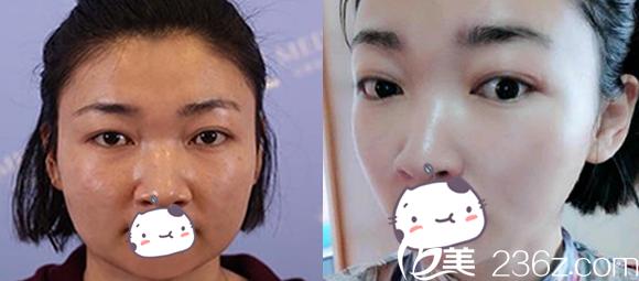 面部吸脂脸变化大吗?看合肥白领安琪儿面部抽脂前后对比照