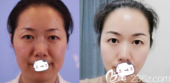 合肥白领安琪儿面部埋线提升案例效果图片欣赏