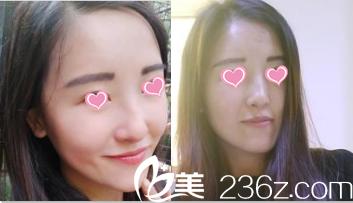 瞧我4月3日在北京亚馨美莱坞医院找王文娟做面部脂肪填充25天效果