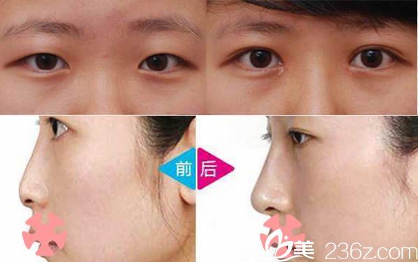 泉州东大双眼皮和鼻综合隆鼻案例
