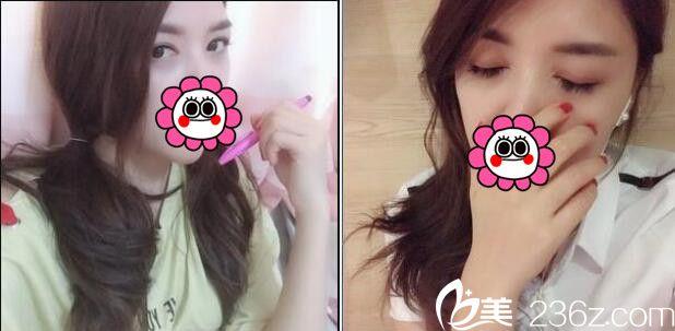 上海百达丽双眼皮做的好不好?分享我三个月前做的切开法双眼皮真实效果图