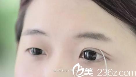 双眼皮与单眼皮的区别