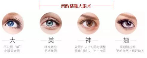 """赵医生的""""灵韵精雕大眼术""""特点"""