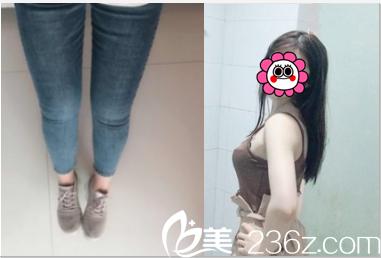 面诊北京八大处国贸门诊韩雪峰后做了吸脂瘦大腿+手臂43天效果不错