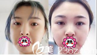 24岁妹子分享在北京中日友好医院找任冲做切开双眼皮修复+开眼角术后1月对比照