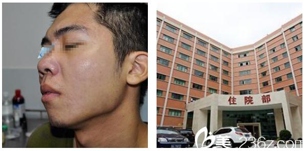 广州去痘印痘坑医院哪家好?看我选择广药三院巫尾英做的祛痘坑案例效果