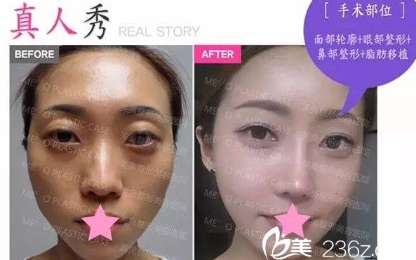 眼部整形+鼻部整形+脂肪移植前后效果对比图