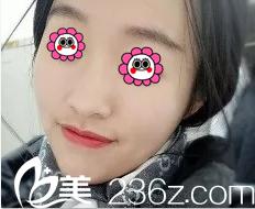 我来分享在北京美颐天医院找吉光宇做果酸换肤祛痘效果
