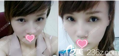 来看北京丽都医院刘宁和闵英俊联手打造双眼皮和鼻综合案例前后对比效果图