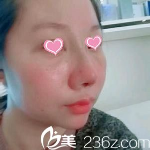 南昌美伊尔整形韦敏做隆鼻手术怎么样?隆鼻手术后8天过程分享