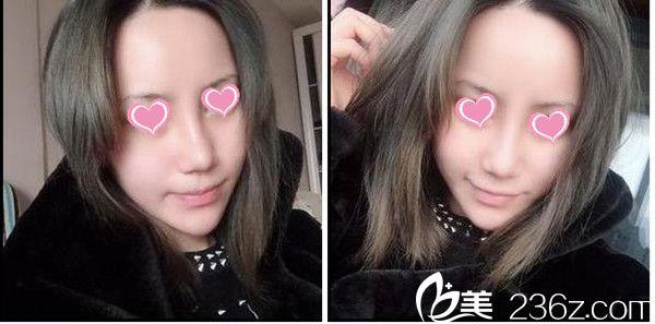 分享下我在赣州亚韩整形找吴礼诚做的隆鼻手术全过程吧