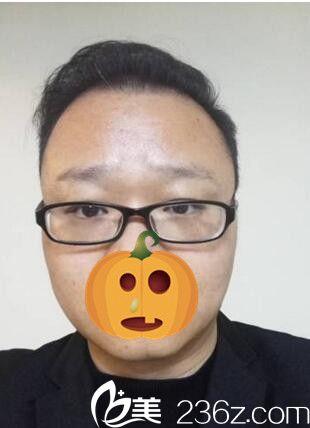 讲讲我在郑州新生医院做植发的经历 从此摆脱脱发的噩梦