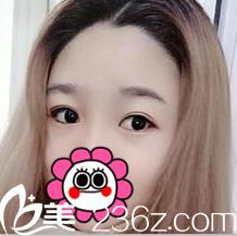 闺蜜说马兰花韩式双眼皮技术好,我就在北京美天医院做了你看2月效果