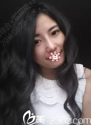 16年飞韩国夏娃eve整形郑润载那儿做的假体隆鼻+耳软骨垫鼻尖+双眼皮+开眼角