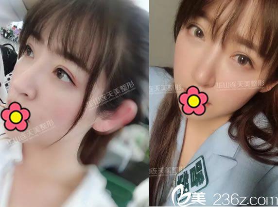 16岁做过切开双眼皮现在下垂严重 杭州华山连天美盛飞给做了双眼皮修复和开内眼角