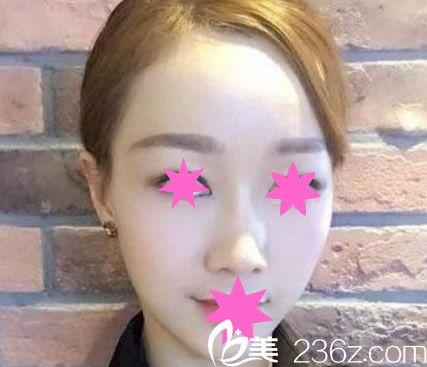 找内蒙古一机医院整形科乌云医生做了全脸脂肪填充 才知道恢复后效果是永久的