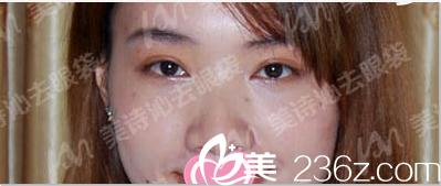 34岁姜女士在北京美诗沁医院找张志兵体验不开刀溶脂祛眼袋说效果满意