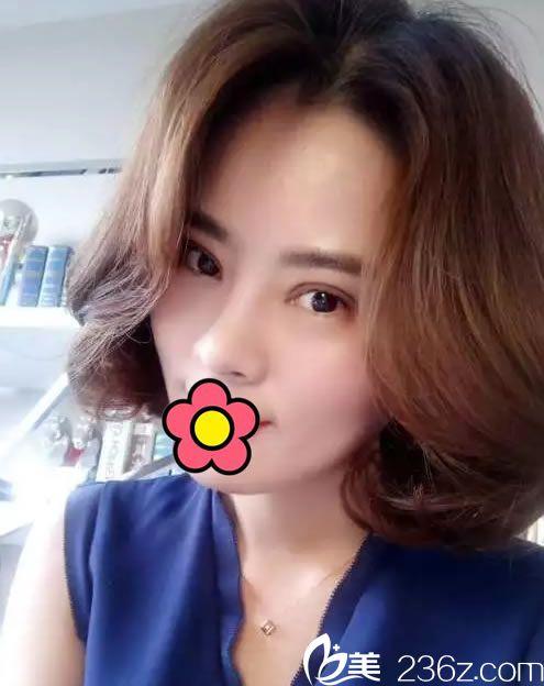 我是杭州赫本家的一名医美工作人员 找林峰医生帮我做了双眼皮综合手术