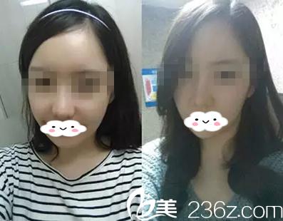 哈尔滨丽珍吴铭俊医生面部轮廓整形让我重新找回自信