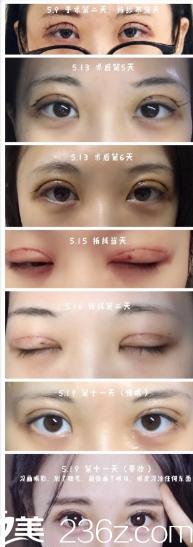 12号青岛蓝石整形医院于忠华主任做的全切双眼皮手术+开内眼角手术,感觉有点不符合我的审美,大家帮我看看是不是很大众