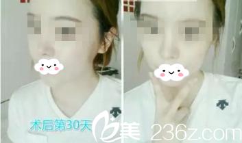 韩国春天金起雄院长面部轮廓整形,让我变成了气质女神