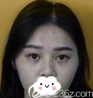 沈阳和平李淼医疗美容诊所穆晓驰术前照片1