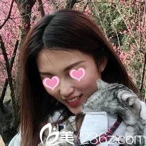 都说江西广济整形黄宇青医生植发手术很厉害,亲自体验之后我也经不住为她点赞