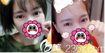 李女士展示在北京亚楠容悦医院找蒋亚楠做切开双眼皮+开眼角第38天照