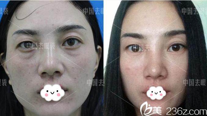 广州美诗沁医疗美容医院祛眼袋怎么样?看霍建法医生案例