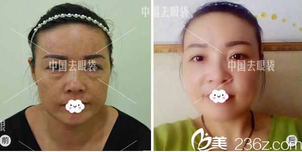广州美诗沁医疗美容医院祛眼袋案例对比图