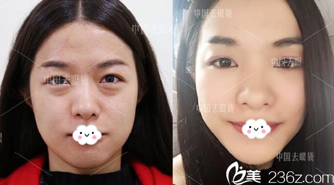 广州美诗沁医疗美容医院张永义院长祛眼袋案例