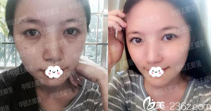 广州美诗沁医疗美容医院马满仓院长祛眼袋案例
