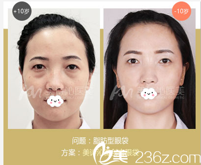 广州美诗沁医疗美容医院脂肪性祛眼袋案例