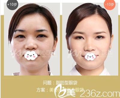 广州美诗沁医疗美容医院20分钟微创祛眼袋案例