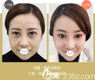 广州美诗沁医疗美容医院衰老型眼袋祛除案例