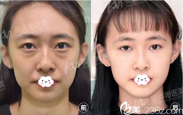 广州美诗沁医疗美容医院不开刀祛眼袋案例对比图