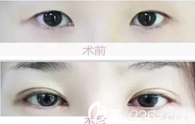 杏林双眼皮整形真人案例前后对比