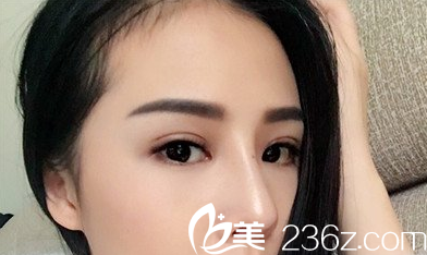 围观我找太原丽都杨明峰给做的双眼皮整形失败修复效果怎么样,分享恢复过程图