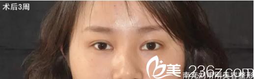 南充医美尔刘明刚切开双眼皮+开眼角术后3周对比图 现在我女神范十足