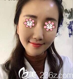 我承认新疆华美整形医院王世宏做的自体脂肪丰太阳穴+丰脸颊+丰额头真不含糊