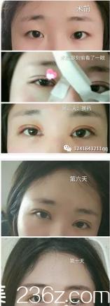 4月4在青岛瑞美国际医疗中心做的小切口双眼皮、开内眼角手术,价格7000多
