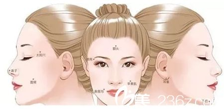 南宁亚韩自体脂肪全脸填充部位