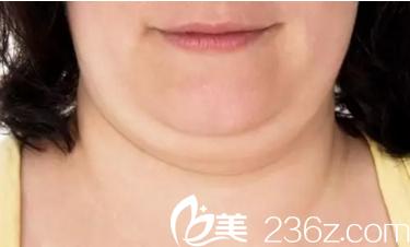 锦州富来慕光纤热塑——让你从此告别双下巴!附真人案例