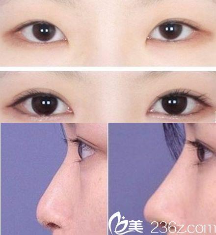 池州伊尚美全切双眼皮案例+假体隆鼻案例