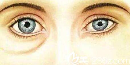 长春卢立平祛眼袋手术效果